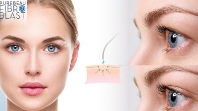 podizanje očnih kapaka