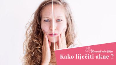 Blog banner za akne